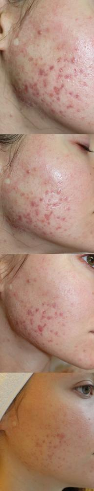 Демодекоз фото до и после