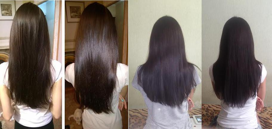 Эффективные шампуни при выпадении волос